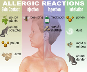 Allergies – The biggest lies of the devil!