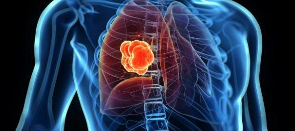 Lung Cancer | TruLight Radio XM
