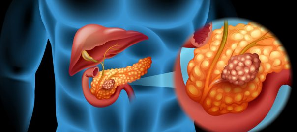 Liver,Bladder & Pancreas Cancer