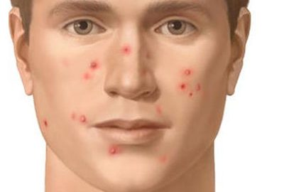 Skin Disorders due to social anxiety!