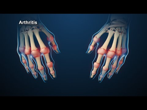 The Spiritual Reason Behind Rheumatoid Arthritis