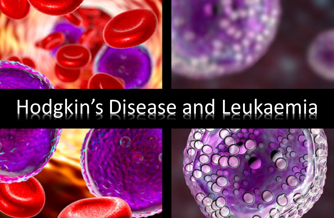 The Spiritual Reason Behind Hodgkin's Disease and Leukaemia